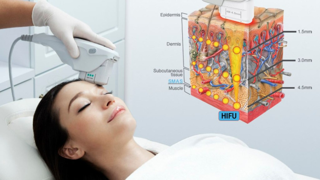 Save over 70% on the Non-Surgical HIFU 'Traditional Facelift'